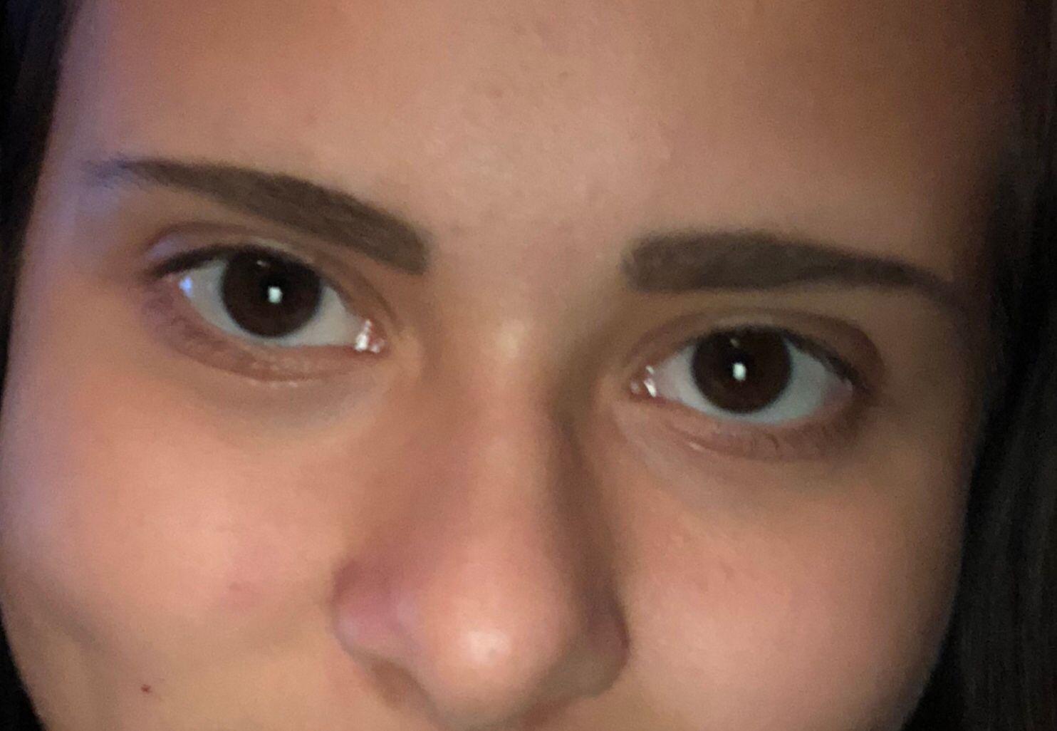 Augenringe Englisch